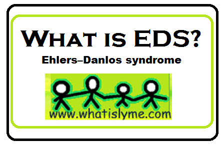 ehlers danlos syndrom
