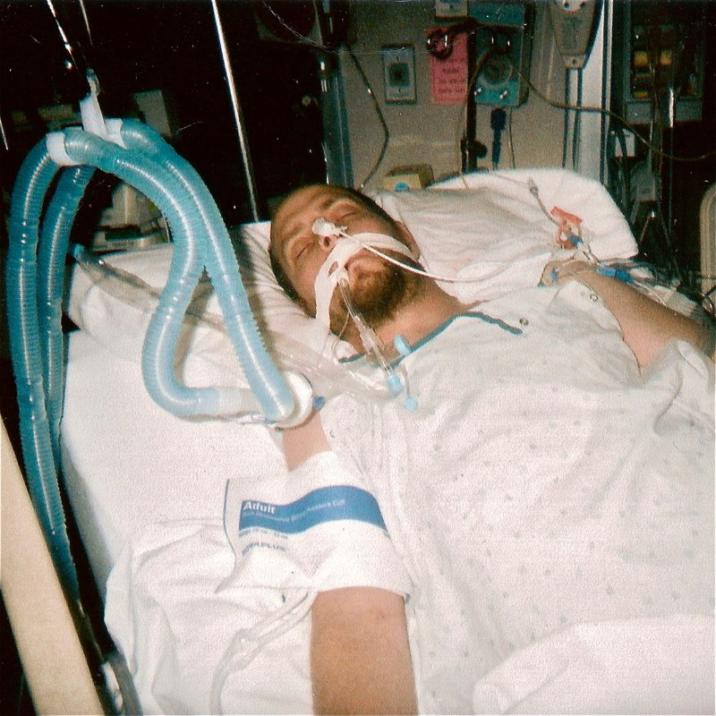 "Photo taken in ICU while on breathing apparatus in post-surgery following a life-saving 6-way cardiac bypass. Operation preceded by massive Lyme Disease-induced ""widow-maker"" heart attack 4 months prior (left untreated due to misdiagnosis as West Nile Virus), which I am now certain was caused by a specific condition known as ""Lyme complete heart block."" ~Mike"