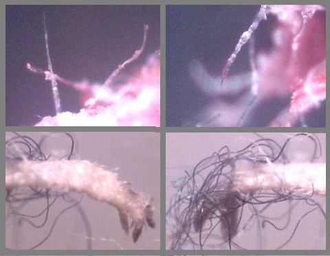 Photo Credit: http://www.morgellons.org/