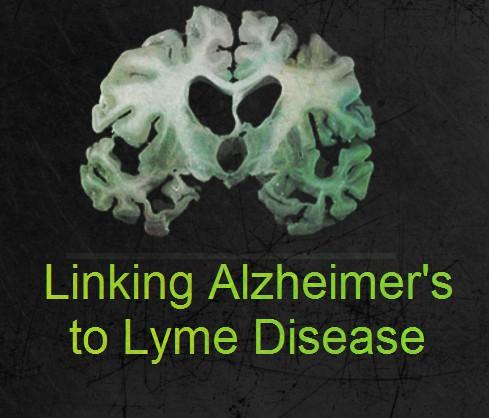 alzheimers=lyme