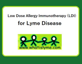 LDI for Lyme disease