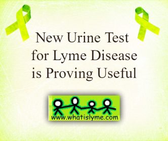 new urine test for lyme disease